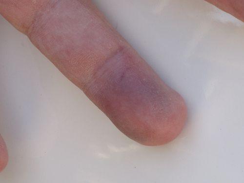 Finger 006