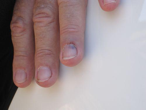 Finger 004