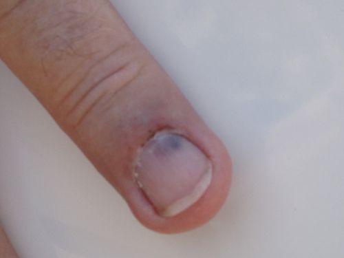 Finger 005
